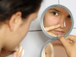 cómo evitar el acné en la cara
