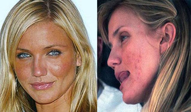 cameron diaz acne