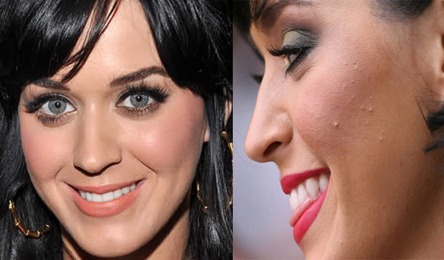 katy perry acne