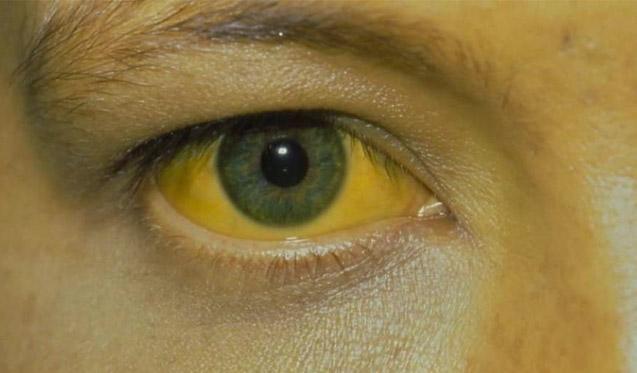 ictericia en los ojos síntomas