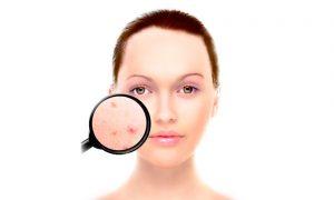 Los últimos avances en dermatología