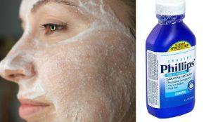 Leche de magnesia para el acné