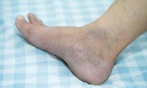 El acné y las varices