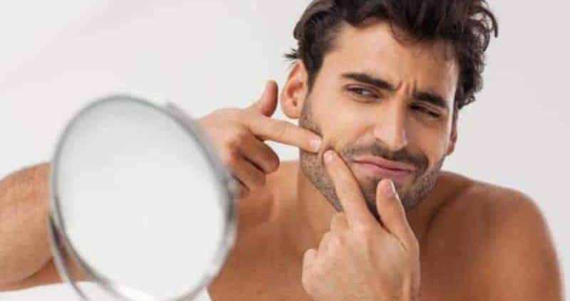 masturbarse causa acné