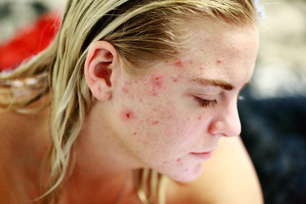 acne-temprana-edad