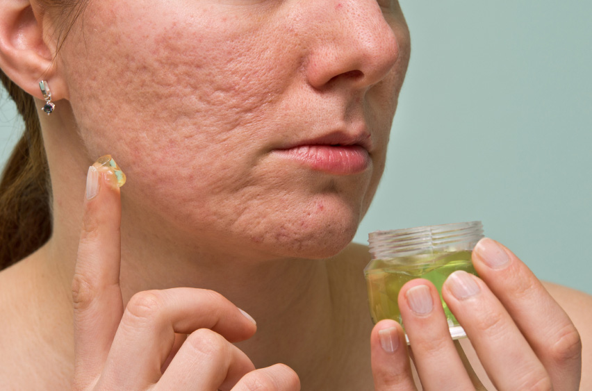 eliminar marcas de acné sin cirugía