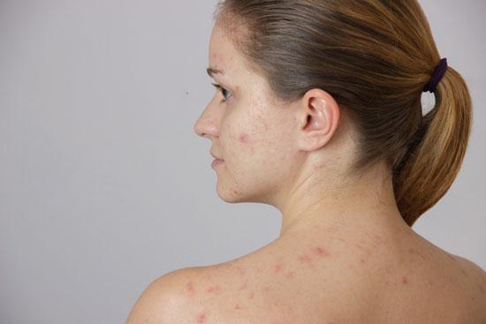acné en el embarazo causas