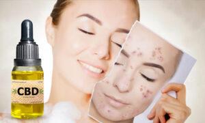 El CBD y el acné